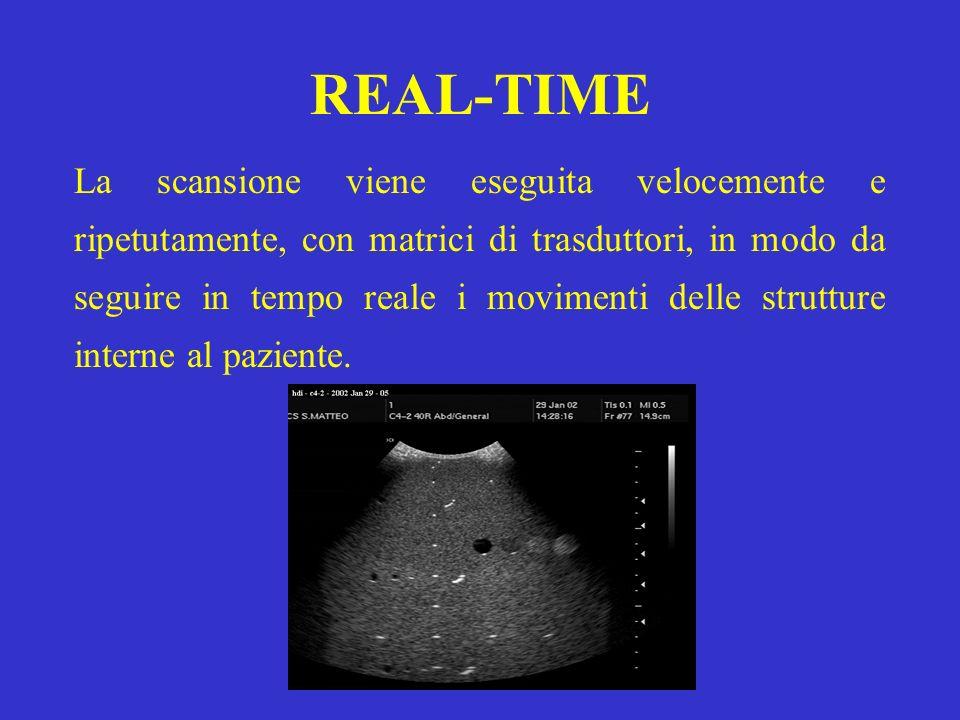 REAL-TIME La scansione viene eseguita velocemente e ripetutamente, con matrici di trasduttori, in modo da seguire in tempo reale i movimenti delle str