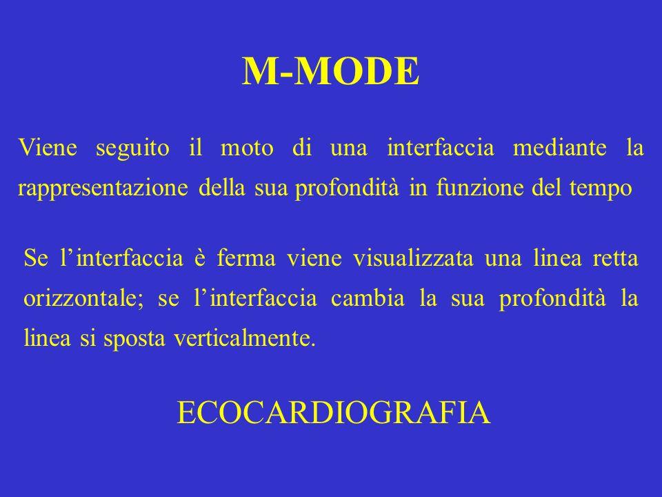 M-MODE Viene seguito il moto di una interfaccia mediante la rappresentazione della sua profondità in funzione del tempo Se linterfaccia è ferma viene