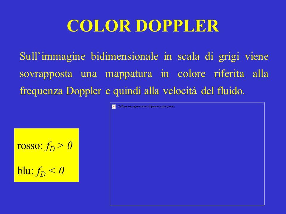 COLOR DOPPLER Sullimmagine bidimensionale in scala di grigi viene sovrapposta una mappatura in colore riferita alla frequenza Doppler e quindi alla ve