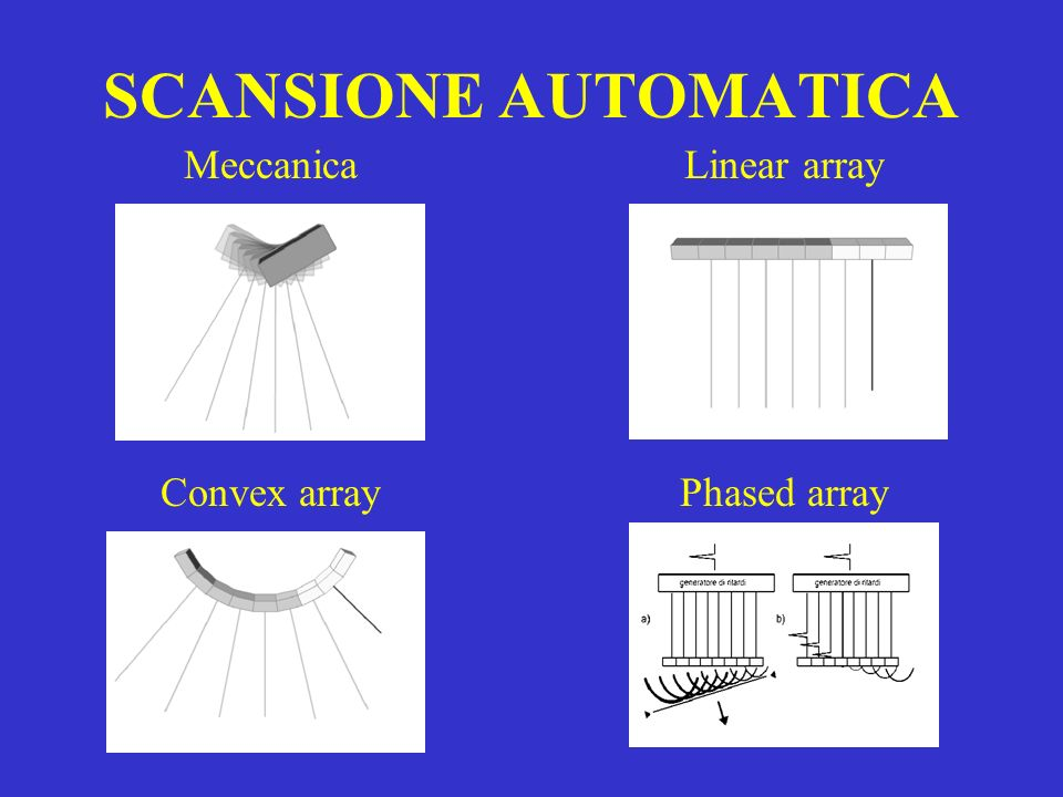 SCANSIONE AUTOMATICA Linear array Phased arrayConvex array Meccanica