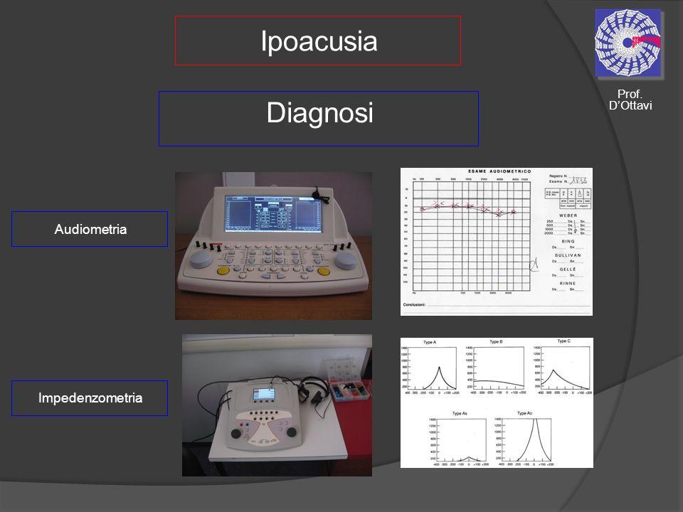 Ipoacusia Impedenzometria Diagnosi Audiometria Prof. DOttavi