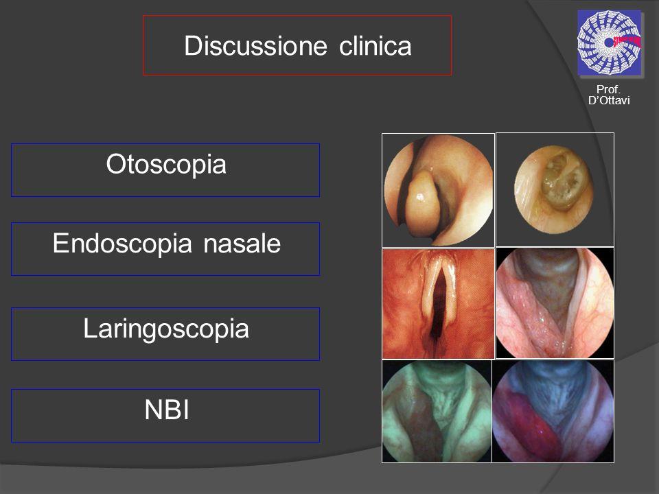 Discussione clinica Otoscopia Endoscopia nasale Laringoscopia NBI Prof. DOttavi