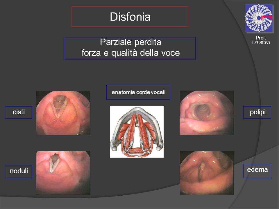 Disfonia Parziale perdita forza e qualità della voce anatomia corde vocali noduli polipi edema cisti Prof.