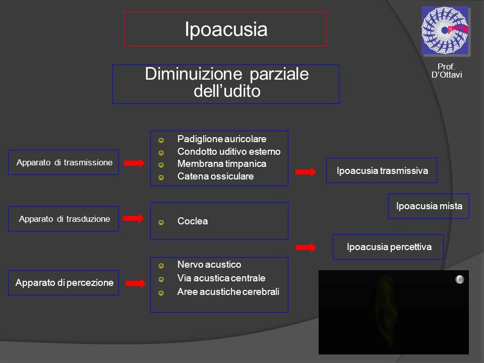 Ipoacusia Apparato di trasduzione Diminuizione parziale delludito Apparato di trasmissione Apparato di percezione Padiglione auricolare Condotto uditi