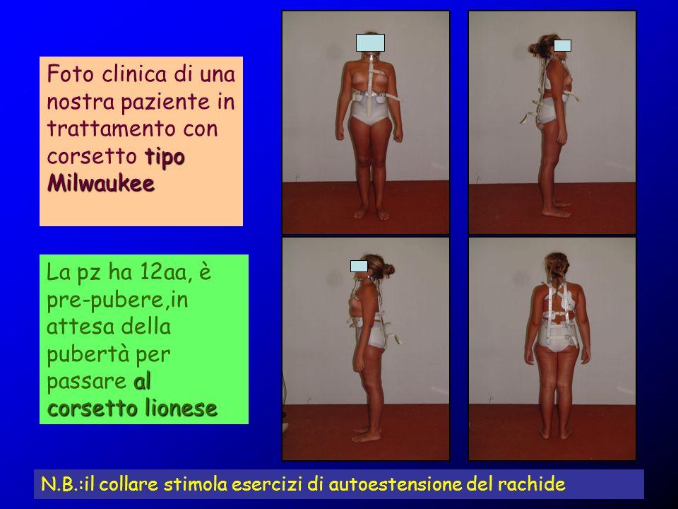 tipo Milwaukee Foto clinica di una nostra paziente in trattamento con corsetto tipo Milwaukee al corsetto lionese La pz ha 12aa, è pre-pubere,in attes