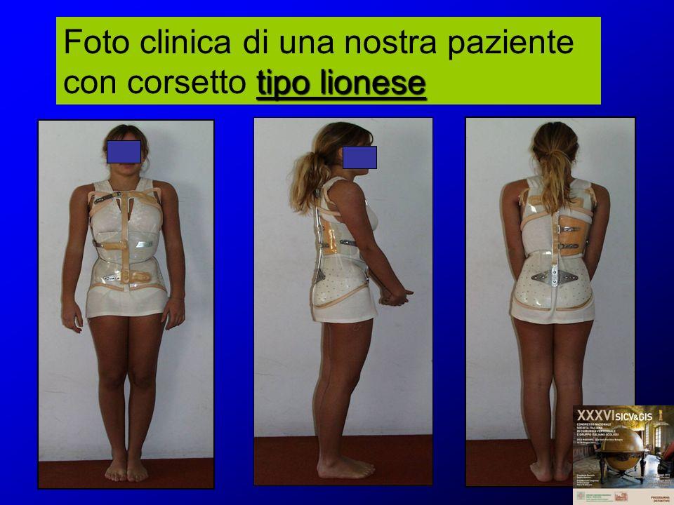 tipo lionese Foto clinica di una nostra paziente con corsetto tipo lionese