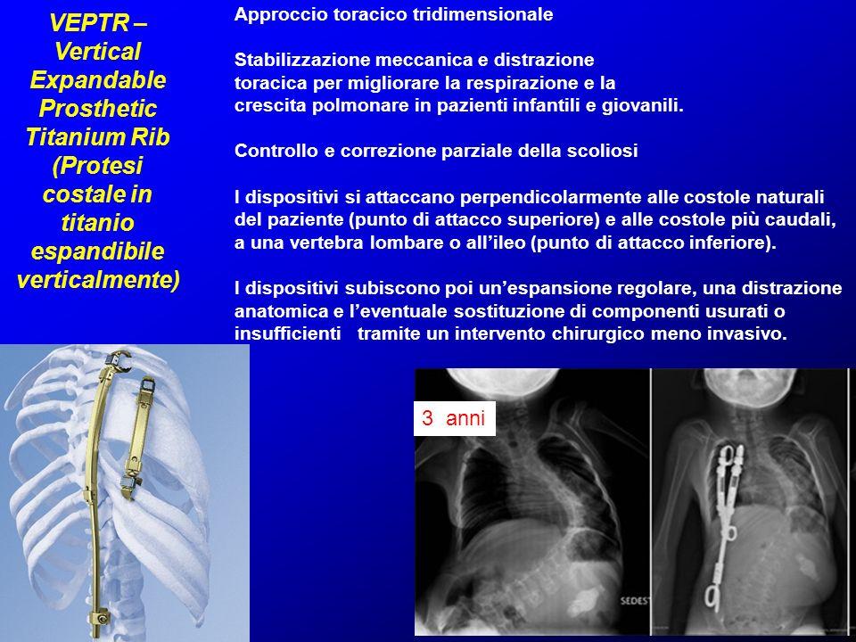 VEPTR – Vertical Expandable Prosthetic Titanium Rib (Protesi costale in titanio espandibile verticalmente) Approccio toracico tridimensionale Stabiliz