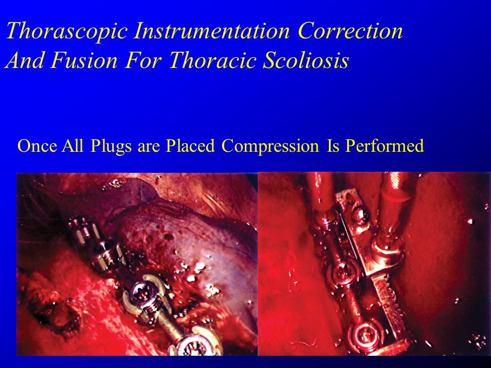 Thorascopic Instrumentation Correction And Fusion For Thoracic Scoliosis Once All Plugs are Placed Compression Is Performed