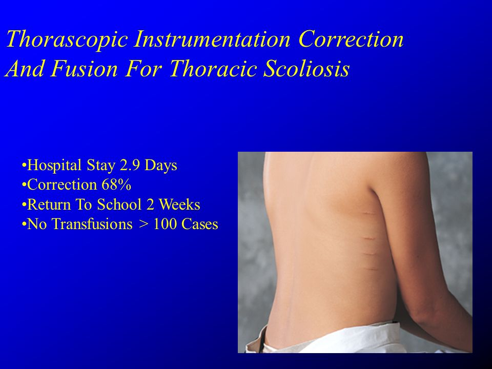 Thorascopic Instrumentation Correction And Fusion For Thoracic Scoliosis Hospital Stay 2.9 Days Correction 68% Return To School 2 Weeks No Transfusions > 100 Cases