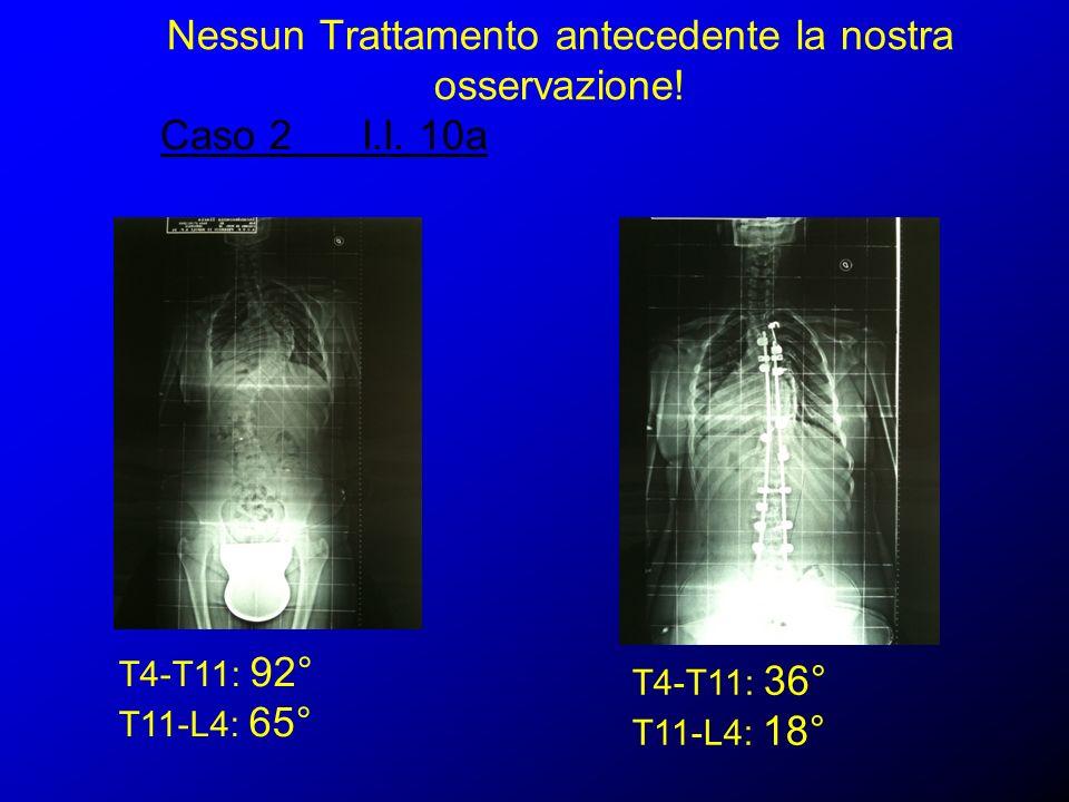 Caso 2 I.I. 10a T4-T11: 92° T11-L4: 65° T4-T11: 36° T11-L4: 18°