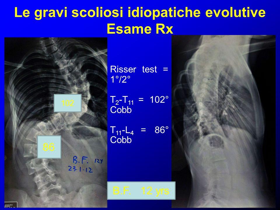 Le gravi scoliosi idiopatiche evolutive Esame Rx 86 102 B.F. 12 yrs Risser test = 1°/2° T 2 -T 11 = 102° Cobb T 11 -L 4 = 86° Cobb