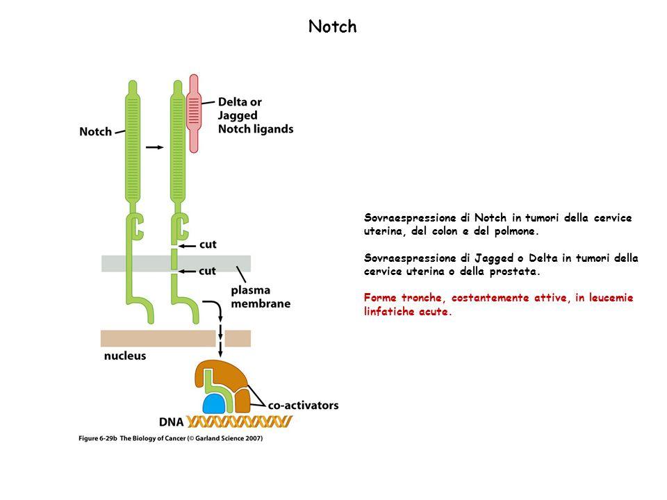 Notch Sovraespressione di Notch in tumori della cervice uterina, del colon e del polmone. Sovraespressione di Jagged o Delta in tumori della cervice u