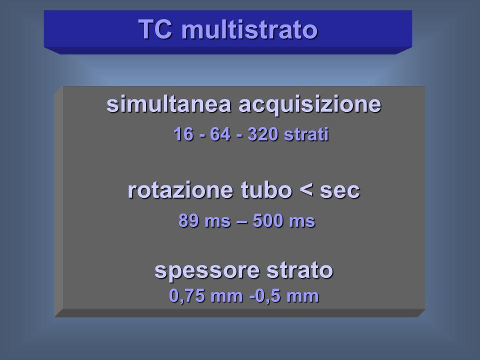 Protocollo Carotidi-Willis TCMS 16: 70 ml mdc TCMS 64: 60 ml mdc Willis TCMS 16: 60 ml mdc TCMS 64: 50 ml mdc TCMS 16: Bolus Tracking TCMS 64: Bolus Test o Bolus Tracking* * condizioni paziente
