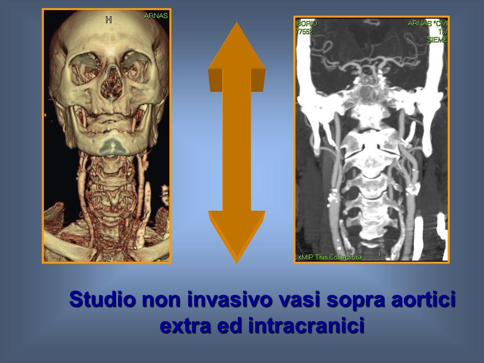 TC multistrato 16 -64 strati Tempo di scansione Tempo di circolo cerebrale (5 sec circa)