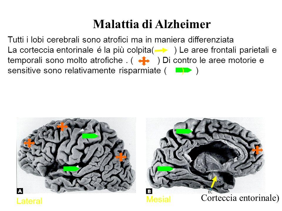 Tutti i lobi cerebrali sono atrofici ma in maniera differenziata La corteccia entorinale é la più colpita( ) Le aree frontali parietali e temporali sono molto atrofiche.