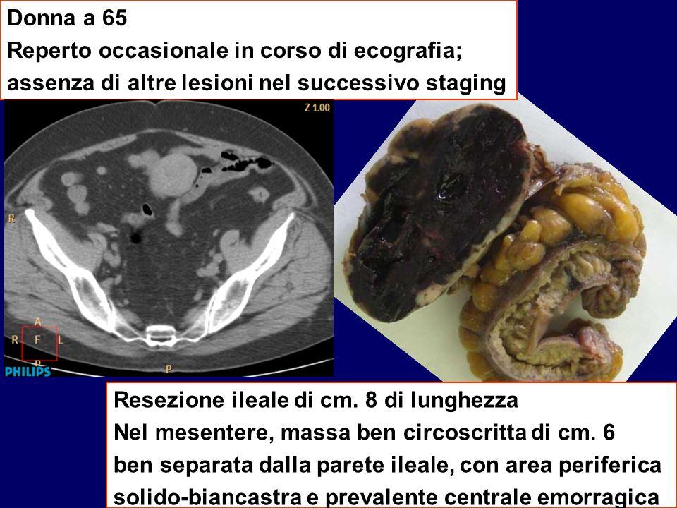 Donna a 65 Reperto occasionale in corso di ecografia; assenza di altre lesioni nel successivo staging Resezione ileale di cm. 8 di lunghezza Nel mesen