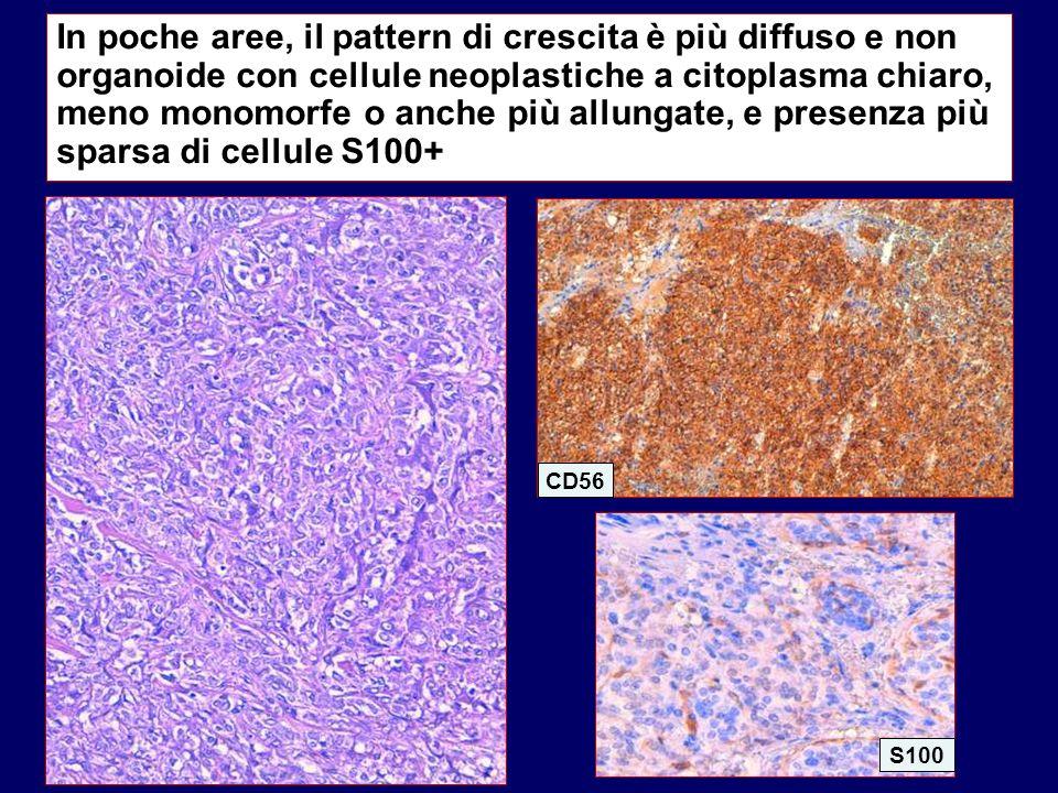 In poche aree, il pattern di crescita è più diffuso e non organoide con cellule neoplastiche a citoplasma chiaro, meno monomorfe o anche più allungate