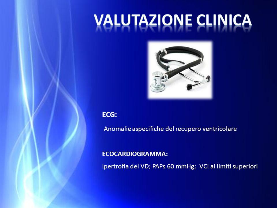 ECG: Anomalie aspecifiche del recupero ventricolare ECOCARDIOGRAMMA: Ipertrofia del VD; PAPs 60 mmHg; VCI ai limiti superiori
