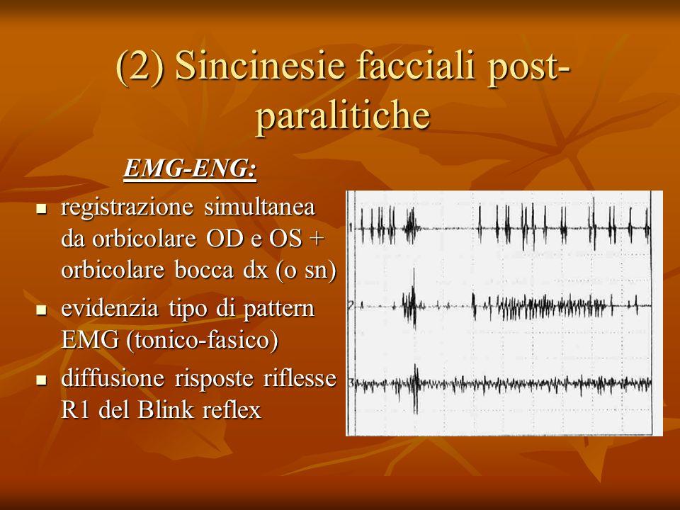 (2) Sincinesie facciali post- paralitiche EMG-ENG: registrazione simultanea da orbicolare OD e OS + orbicolare bocca dx (o sn) registrazione simultanea da orbicolare OD e OS + orbicolare bocca dx (o sn) evidenzia tipo di pattern EMG (tonico-fasico) evidenzia tipo di pattern EMG (tonico-fasico) diffusione risposte riflesse R1 del Blink reflex diffusione risposte riflesse R1 del Blink reflex
