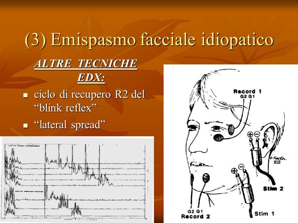 (3) Emispasmo facciale idiopatico ALTRE TECNICHE EDX: ciclo di recupero R2 del blink reflex ciclo di recupero R2 del blink reflex lateral spread lateral spread