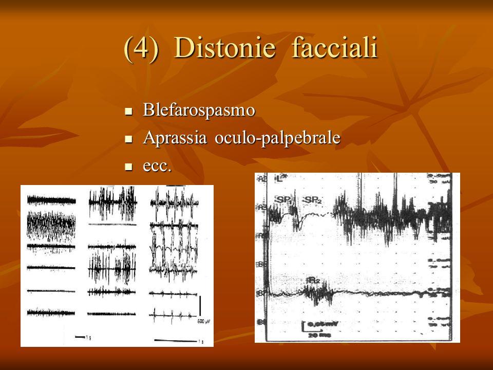 (4) Distonie facciali (4) Distonie facciali Blefarospasmo Blefarospasmo Aprassia oculo-palpebrale Aprassia oculo-palpebrale ecc.