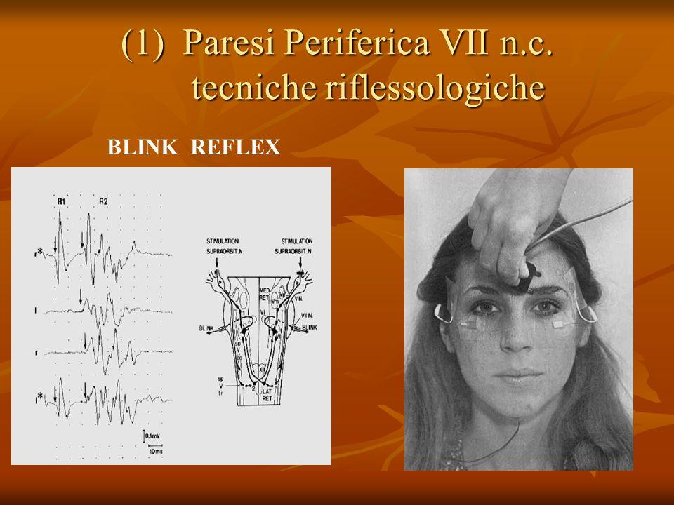 (1)Paresi Periferica VII n.c. tecniche riflessologiche BLINK REFLEX