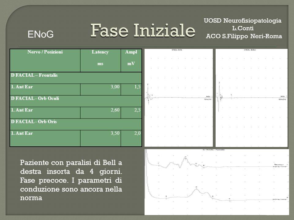 Nervo / PosizioniLatencyAmpl msmV D FACIAL – Frontalis 1. Ant Ear3,001,5 D FACIAL - Orb Oculi 1. Ant Ear2,602,5 D FACIAL - Orb Oris 1. Ant Ear3,502,0