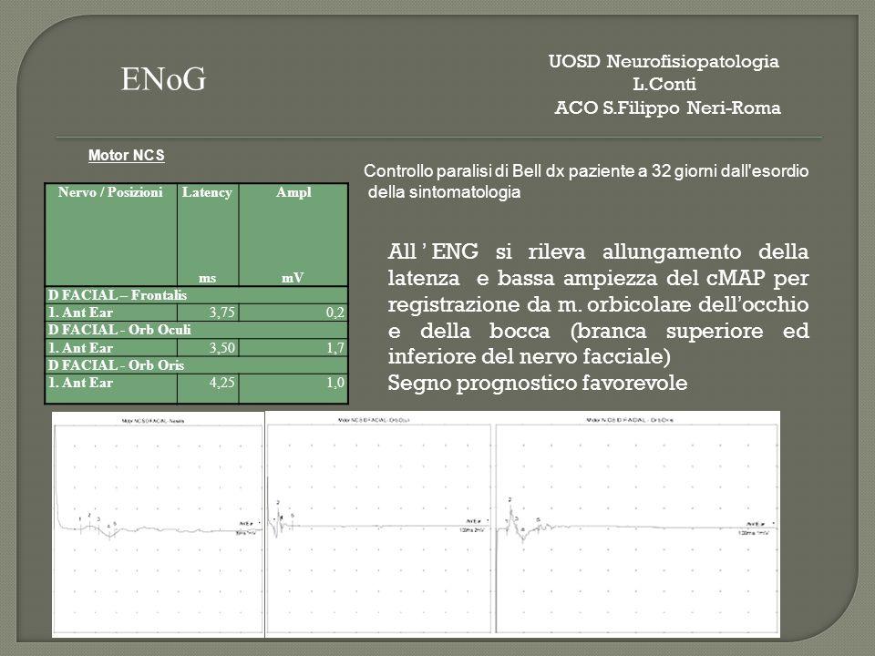 Nervo / PosizioniLatencyAmpl msmV D FACIAL – Frontalis 1. Ant Ear3,750,2 D FACIAL - Orb Oculi 1. Ant Ear3,501,7 D FACIAL - Orb Oris 1. Ant Ear4,251,0