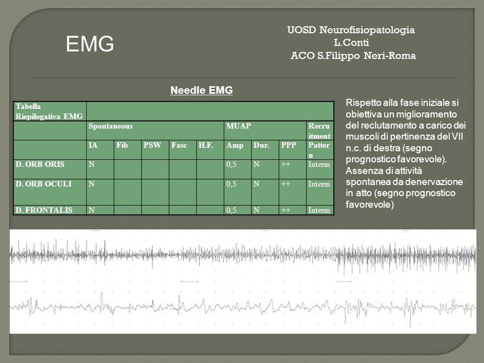 Tabella Riepilogativa EMG SpontaneousMUAPRecru itment IAFibPSWFascH.F.AmpDur.PPPPatter n D. ORB ORISN0,5N++Interm D. ORB OCULIN0,5N++Interm D. FRONTAL