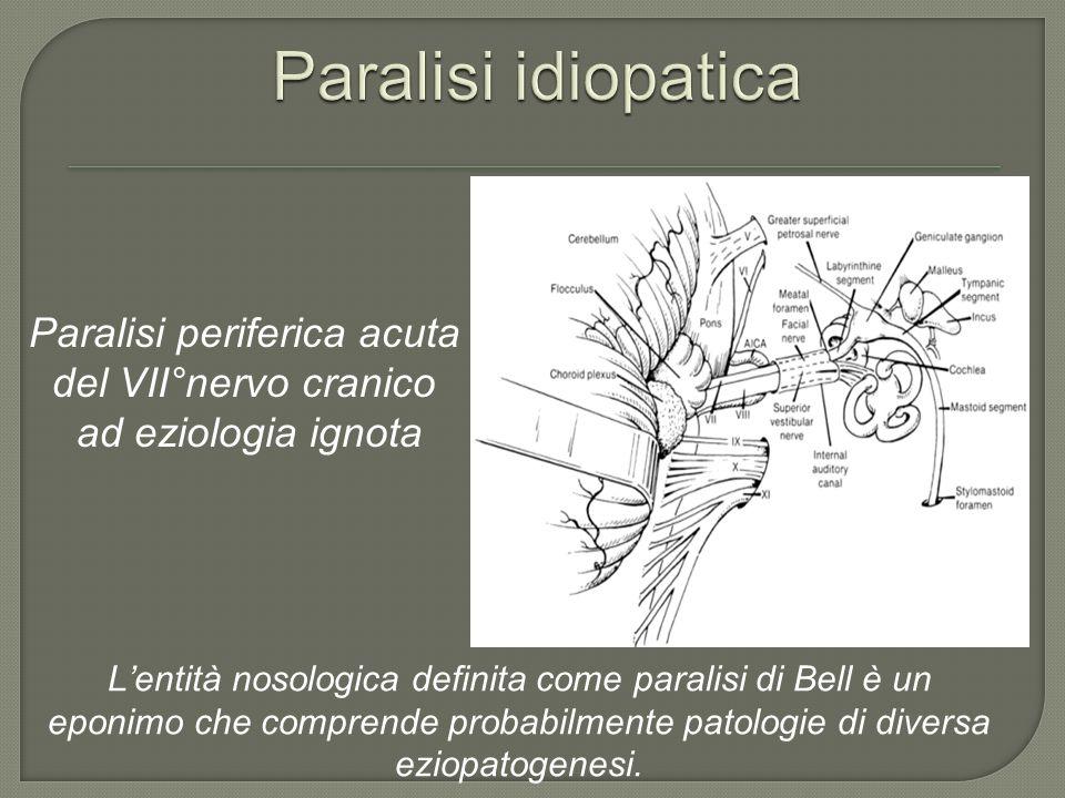 Paralisi periferica acuta del VII°nervo cranico ad eziologia ignota Lentità nosologica definita come paralisi di Bell è un eponimo che comprende proba