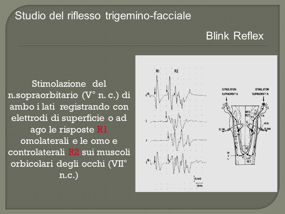 Stimolazione del n.sopraorbitario (V° n. c.) di ambo i lati registrando con elettrodi di superficie o ad ago le risposte R1 omolaterali e le omo e con