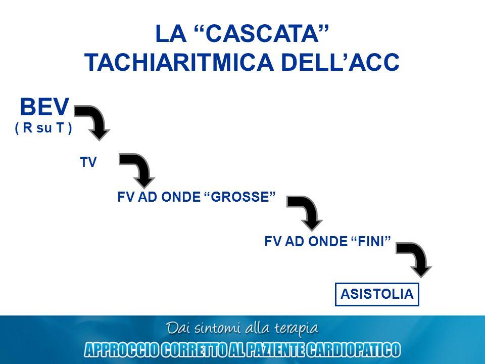 LA CASCATA TACHIARITMICA DELLACC BEV TV FV AD ONDE GROSSE FV AD ONDE FINI ASISTOLIA ( R su T )