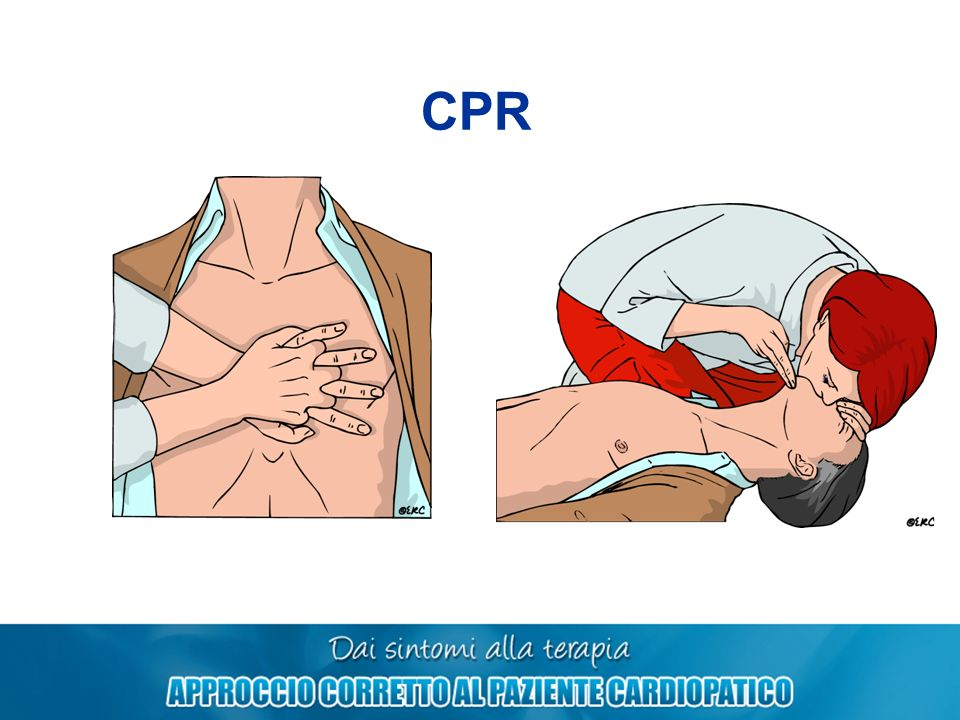 CPR 302
