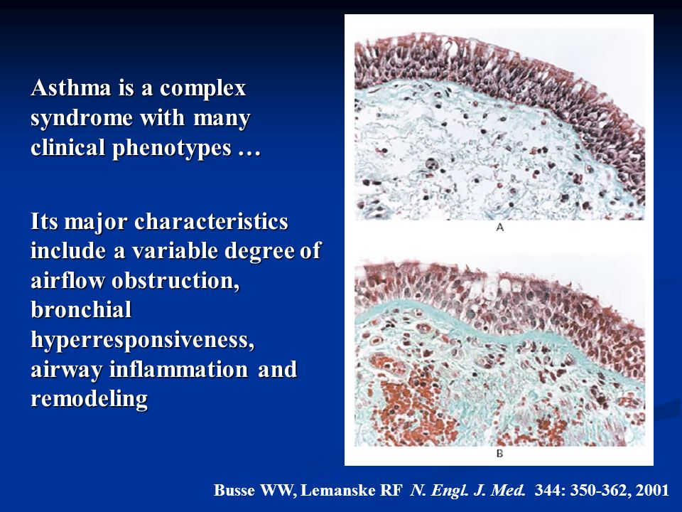 Busse WW, Lemanske RF N. Engl. J. Med. 344: 350-362, 2001 Asthma is a complex syndrome with many clinical phenotypes … Its major characteristics inclu