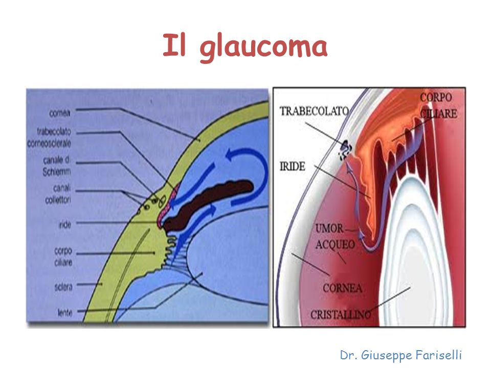 Il glaucoma Dr. Giuseppe Fariselli