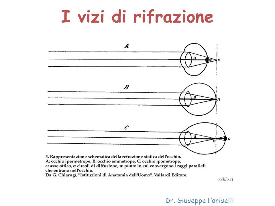 I vizi di rifrazione Dr. Giuseppe Fariselli