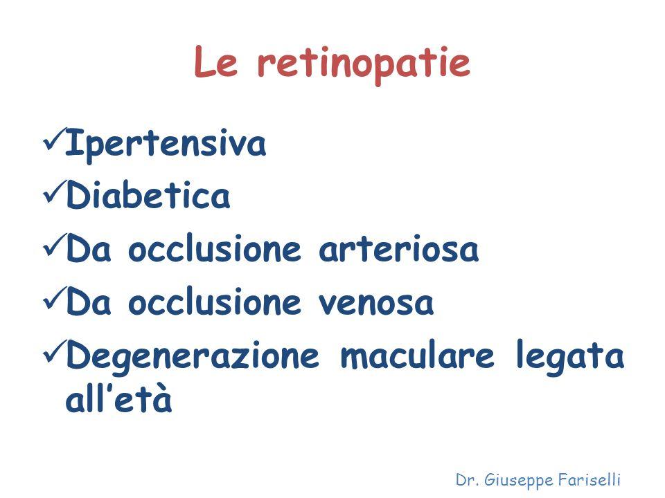 Le retinopatie Ipertensiva Diabetica Da occlusione arteriosa Da occlusione venosa Degenerazione maculare legata alletà Dr. Giuseppe Fariselli