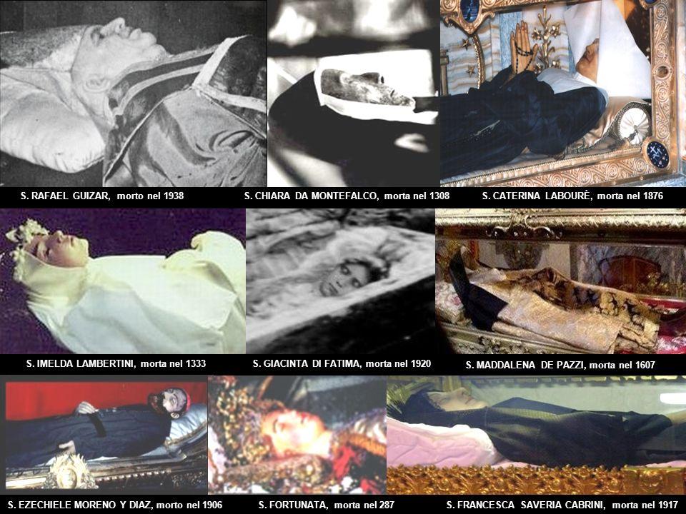 Canali come History Channel e Discovery hanno trasmesso le ricognizioni che sono state effettuate ai santi, in cui sono stati rimossi gli organi di studio, come Santa Bernadette di Lourdes, che ha ancora il suo fegato morbido, come se fosse appena morto, dopo 127 anni dalla morte.