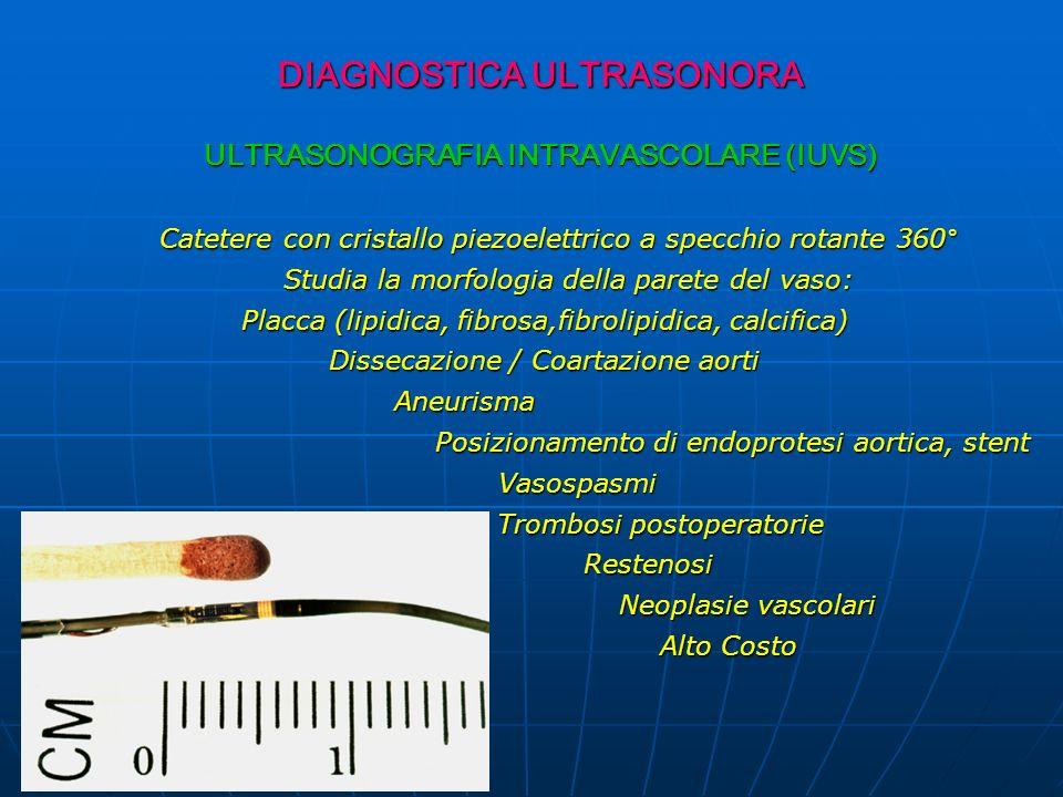DIAGNOSTICA ULTRASONORA DIAGNOSTICA ULTRASONORA ULTRASONOGRAFIA INTRAVASCOLARE (IUVS) Catetere con cristallo piezoelettrico a specchio rotante 360° Catetere con cristallo piezoelettrico a specchio rotante 360° Studia la morfologia della parete del vaso: Studia la morfologia della parete del vaso: Placca (lipidica, fibrosa,fibrolipidica, calcifica) Placca (lipidica, fibrosa,fibrolipidica, calcifica) Dissecazione / Coartazione aorti Dissecazione / Coartazione aorti Aneurisma Aneurisma Posizionamento di endoprotesi aortica, stent Posizionamento di endoprotesi aortica, stent Vasospasmi Vasospasmi Trombosi postoperatorie Restenosi Restenosi Neoplasie vascolari Neoplasie vascolari Alto Costo Alto Costo
