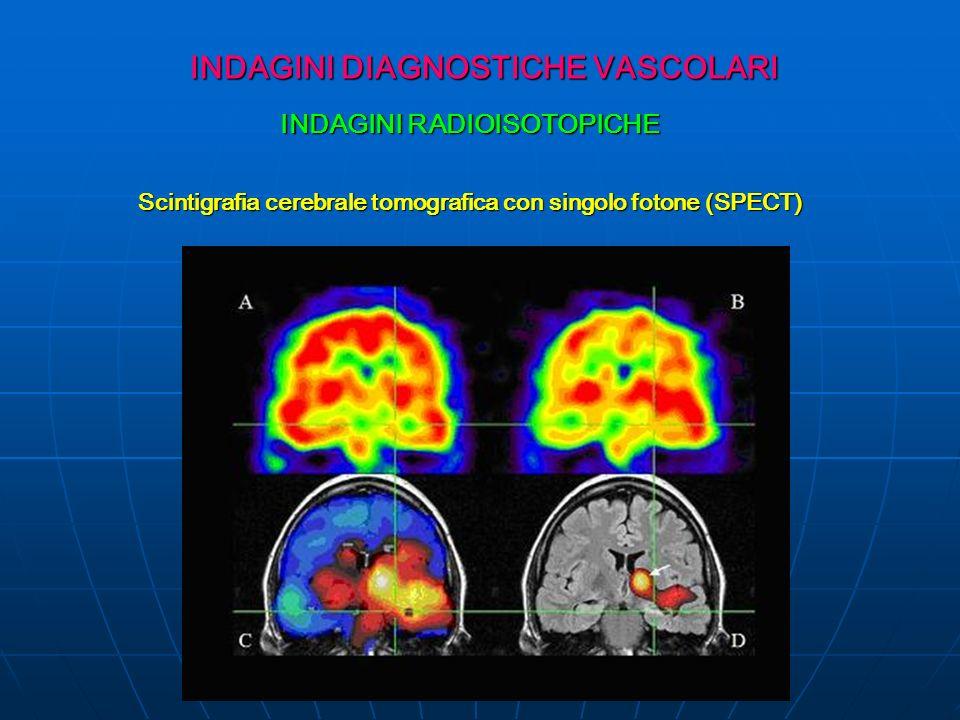 INDAGINI DIAGNOSTICHE VASCOLARI INDAGINI RADIOISOTOPICHE Scintigrafia cerebrale tomografica con singolo fotone (SPECT)