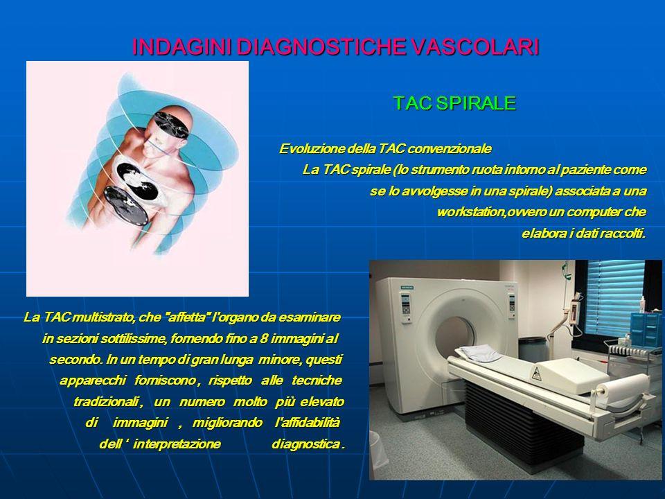 INDAGINI DIAGNOSTICHE VASCOLARI TAC SPIRALE TAC SPIRALE Evoluzione della TAC convenzionale Evoluzione della TAC convenzionale La TAC spirale (lo strum