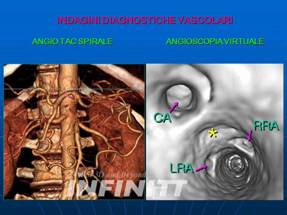 INDAGINI DIAGNOSTICHE VASCOLARI ANGIO TAC SPIRALE ANGIOSCOPIA VIRTUALE ANGIO TAC SPIRALE ANGIOSCOPIA VIRTUALE