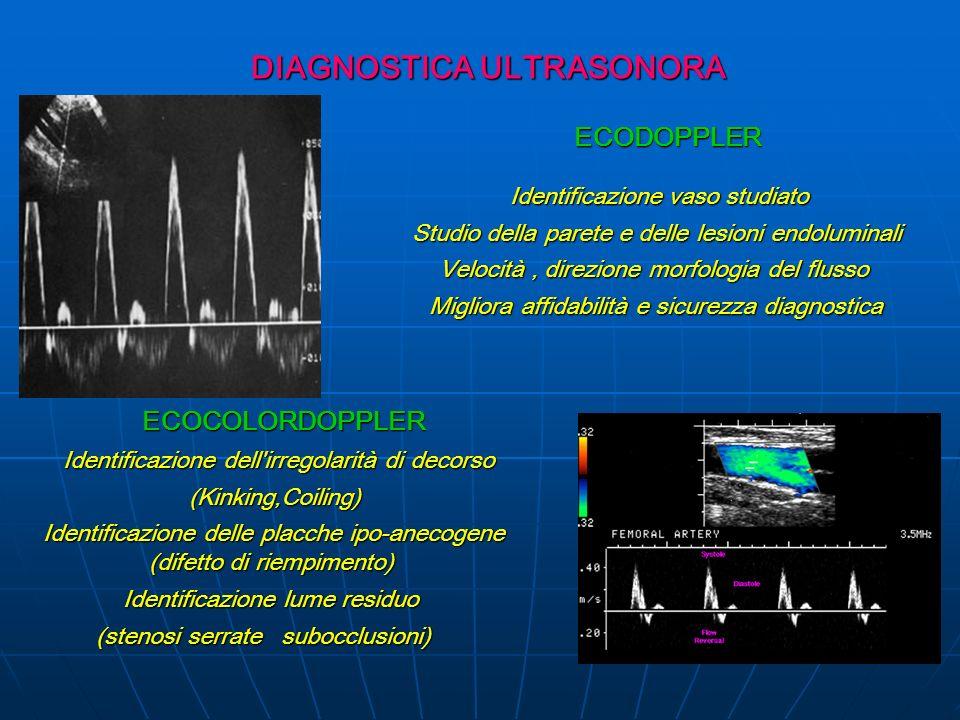 DIAGNOSTICA ULTRASONORA DIAGNOSTICA ULTRASONORA ECODOPPLER ECODOPPLER Identificazione vaso studiato Identificazione vaso studiato Studio della parete