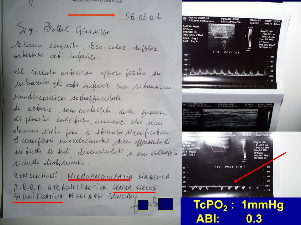 TcPO 2 : 1mmHg ABI: 0.3