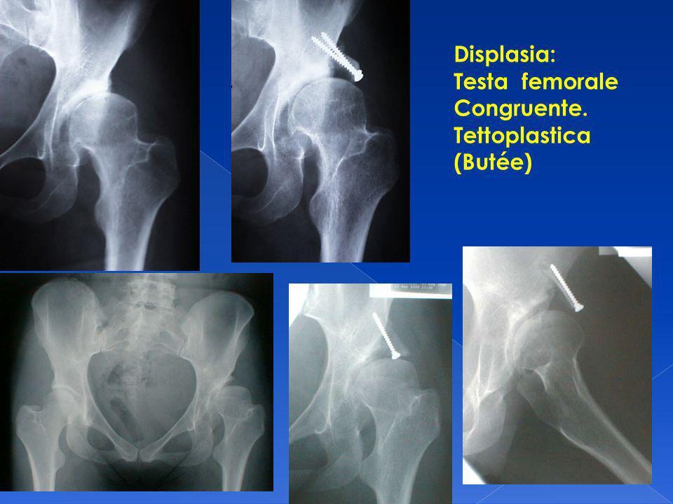 Displasia: Testa femorale Congruente. Tettoplastica (Butée)
