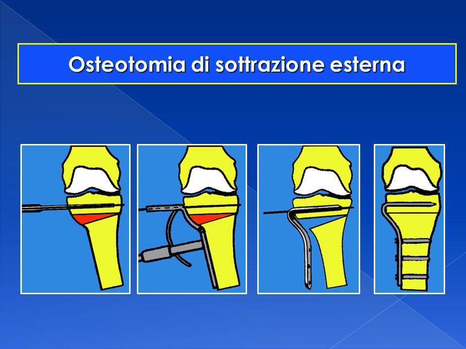 Osteotomia di sottrazione esterna