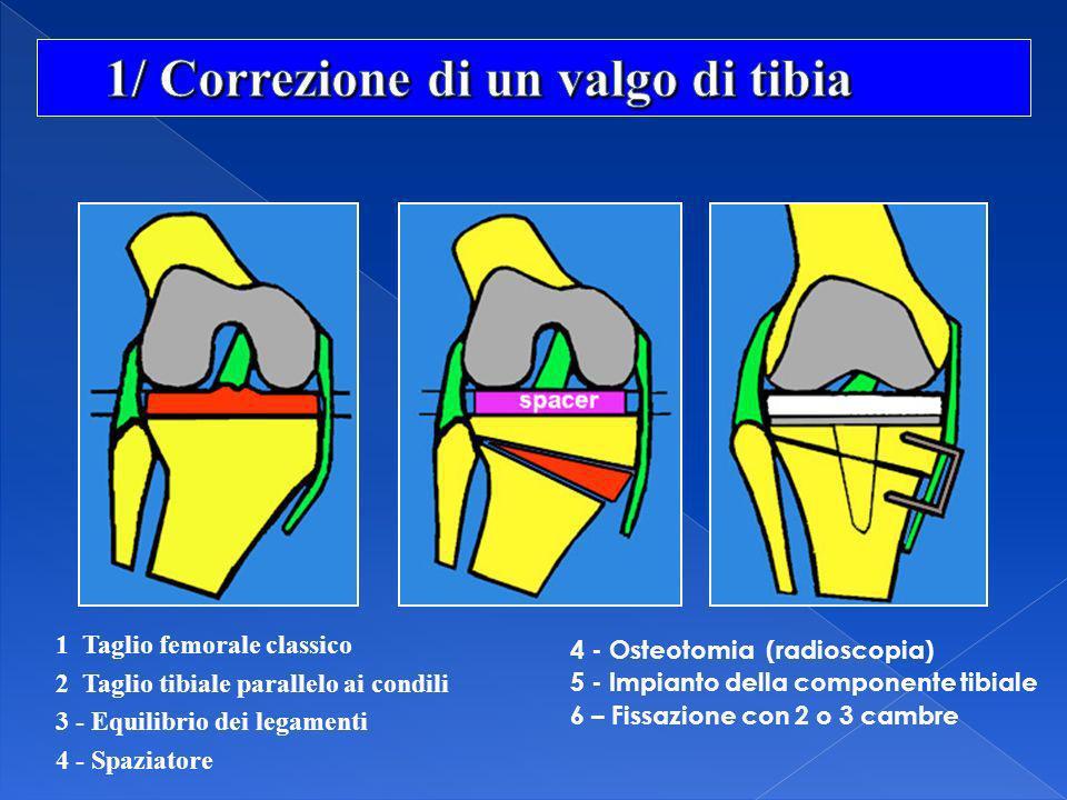 1 Taglio femorale classico 2 Taglio tibiale parallelo ai condili 3 - Equilibrio dei legamenti 4 - Spaziatore 4 - Osteotomia (radioscopia) 5 - Impianto
