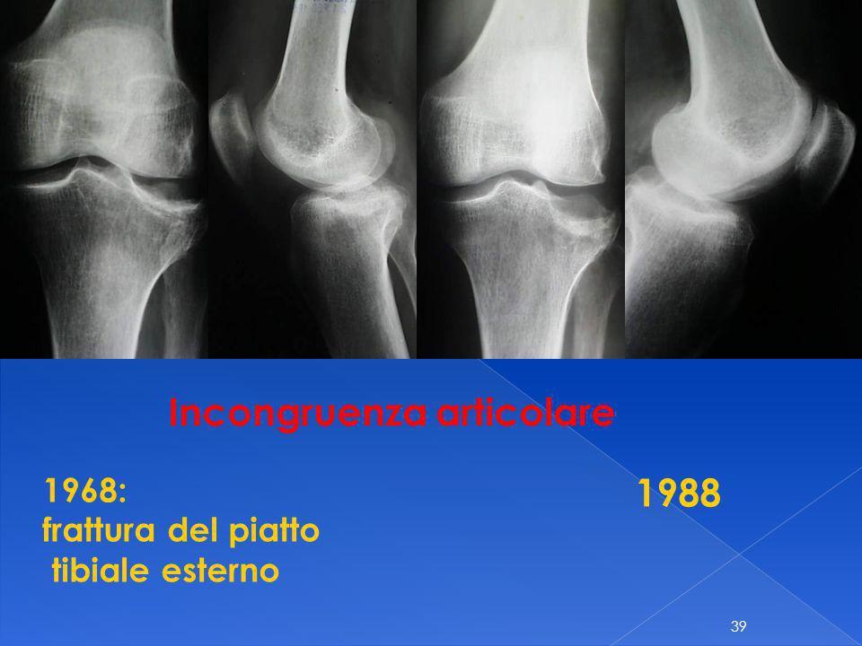 39 1968: frattura del piatto tibiale esterno 1988 Incongruenza articolare