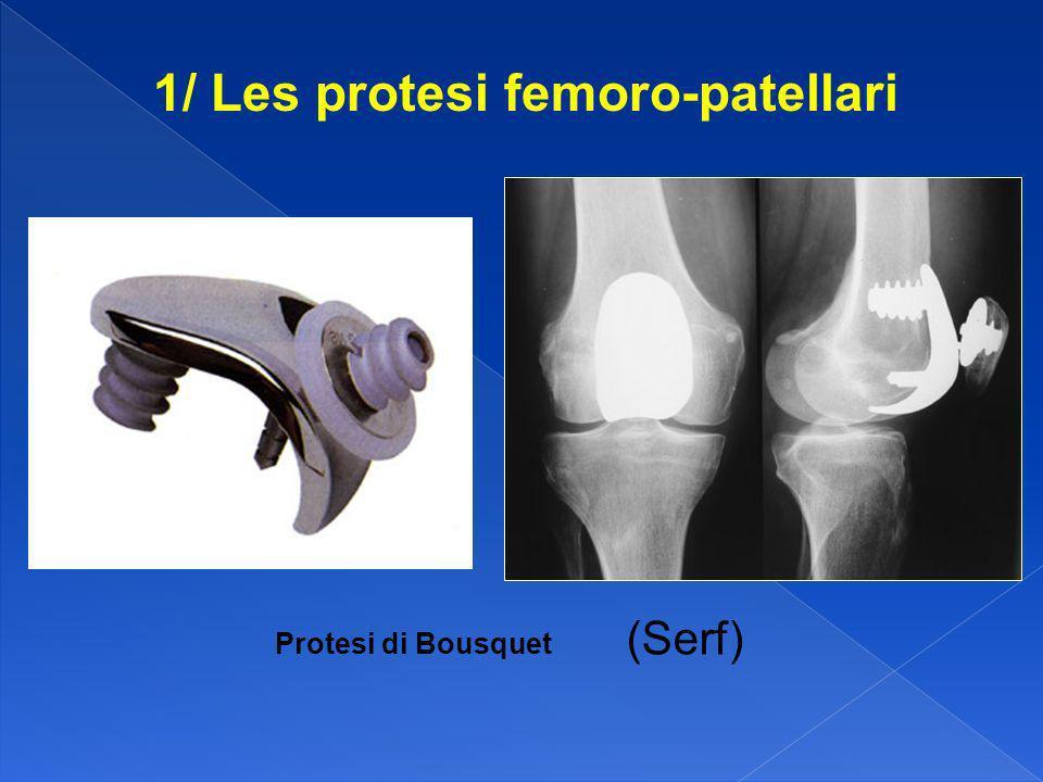 1/ Les protesi femoro-patellari Protesi di Bousquet (Serf)