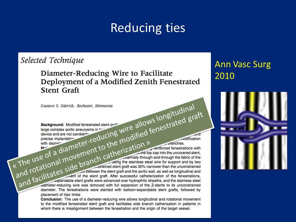 Ann Vasc Surg 2010 Reducing ties « The use of a diameter-reducing wire allows longitudinal and rotational movement to the modified fenestrated graft a